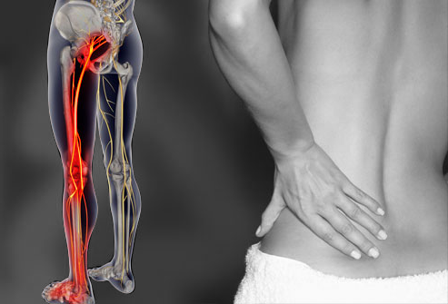 Sciatica pain treated by chiropractors in Huntsville AL and Madison AL