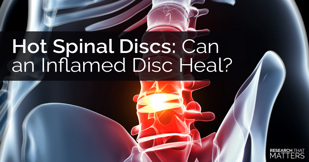 Hot Spinal Discs Can an Inflamed Disc Heal