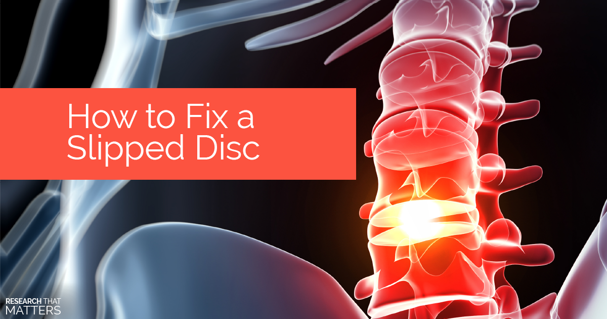 How to Fix a Slipped Disc